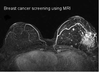 Ultrasound for breast cancer detection