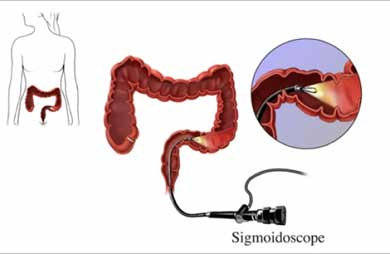 photo of how flexible sigmoidoscopy works